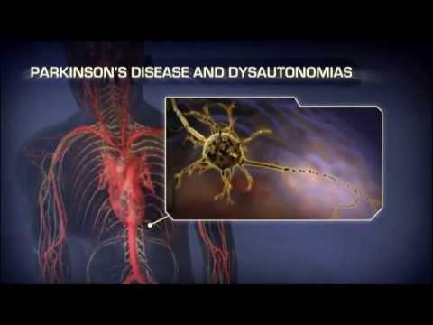 Neurogenic Orthostatic Hypotension - Medical Animation