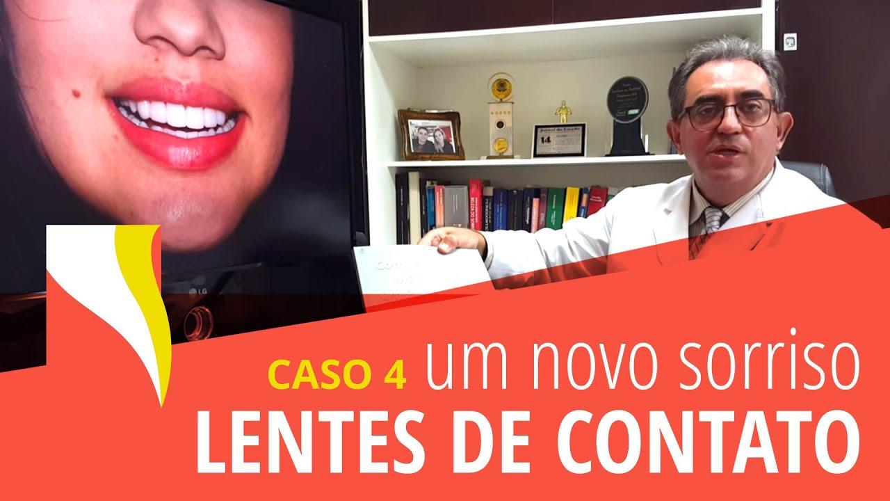 928781f1e3 Lentes de Contato Dentais - Dr Couto