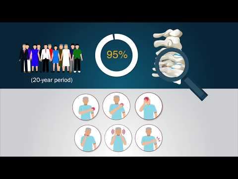 A 20-Year Prospective Longitudinal Study of Degeneration of the Cervical Spine...