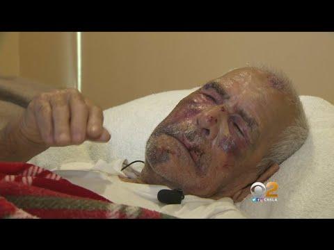 Super y Jaylah - Anciano de 92 años Atacado Sin Piedad Ni Compasión