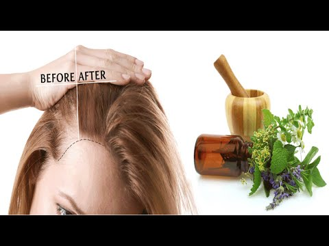 This Amazing Herb That Treats Baldness And Regrows Hair!