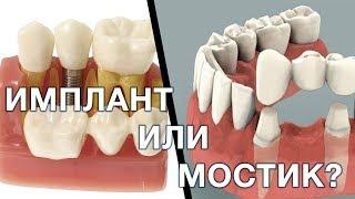 видео зубной имплантат