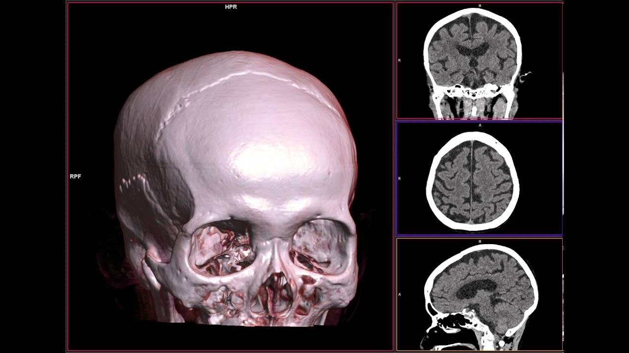 brain mri scan 3d - photo #27