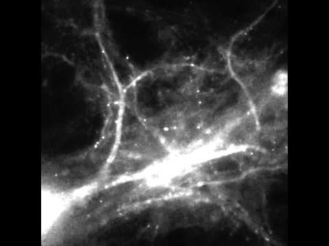 The Molecular Basis of Memory: Tracking mRNA in Brain Cells in Real Time