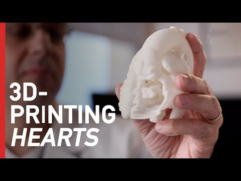 How 3D-Printing is Revolutionizing Heart Surgery
