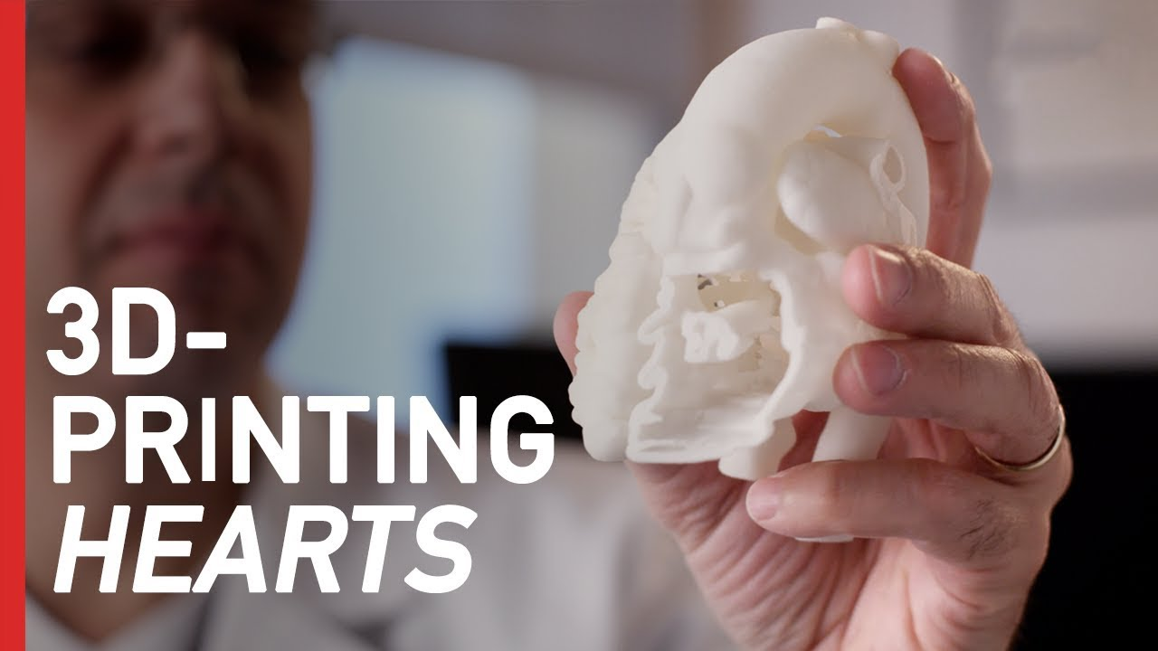 How 3D-Printing is Revolutionizing Heart Surgery | Freethink Superhuman