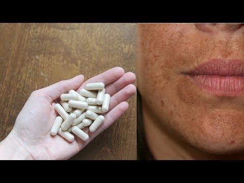 ЭТИ таблетки МОЩНО отбеливают кожу лица