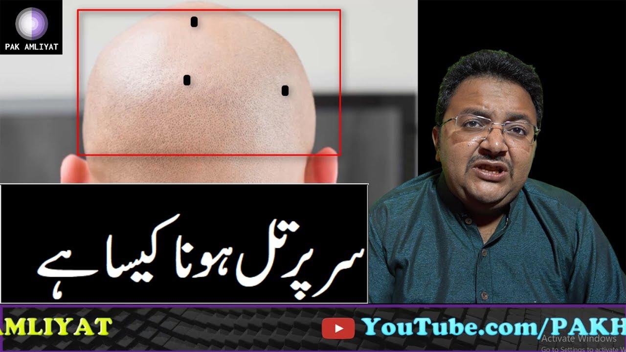 Mole On Head | Sar Par Til Hone Ka Matlab || Mole on Body || Til Ka Raaz || Til Ka Ilm in Urdu/Hindi