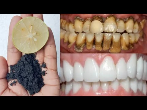 get-white-teeth-in-just-2-minutes-/-how-to-whiten-your-teeth-in-two-minutes.