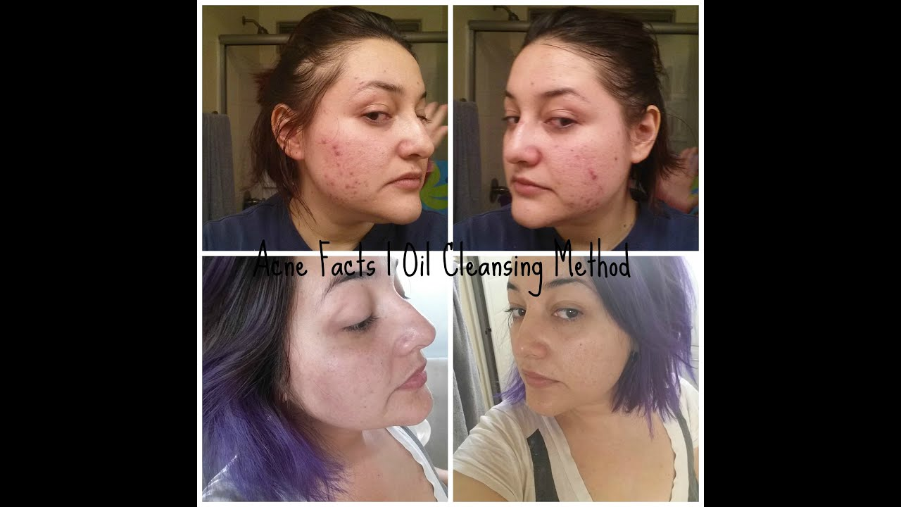 ocm acne
