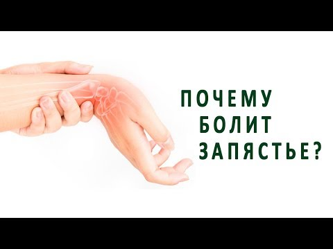 Болит кисть руки при движении руки