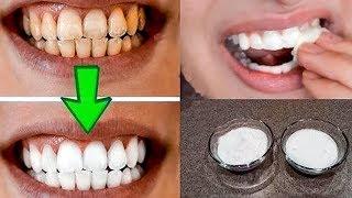 видео Желтые зубы