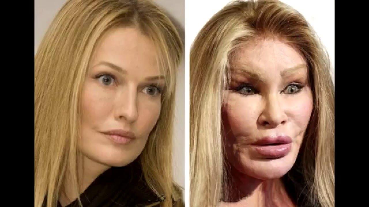 звезды жертвы пластической хирургии фото до и после