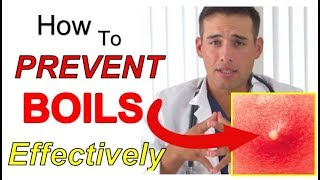 How to PREVENT Boils Effectively (4 STEPS) | The Best Way to PREVENT Boils From Coming Back
