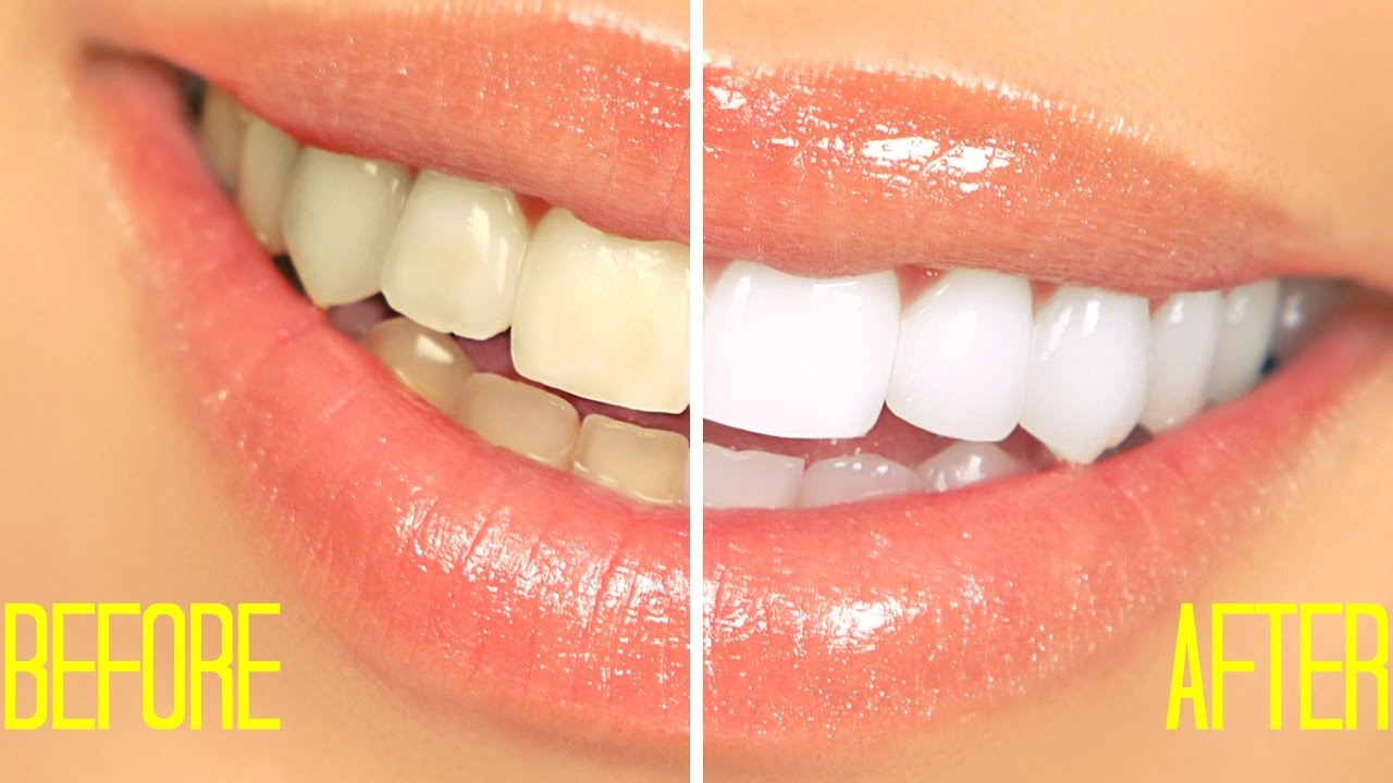 How To Whiten Teeth At Home In 2 Minutes Simple 100 Naturally