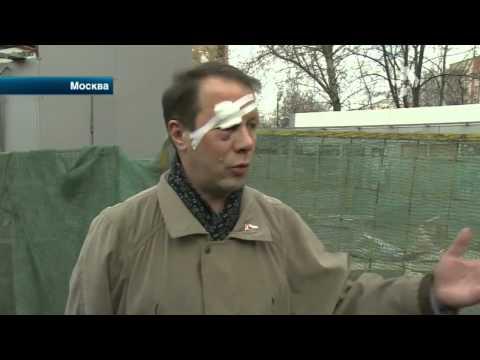 В Москве депутата избили за вопрос о ремонте в подземном переходе