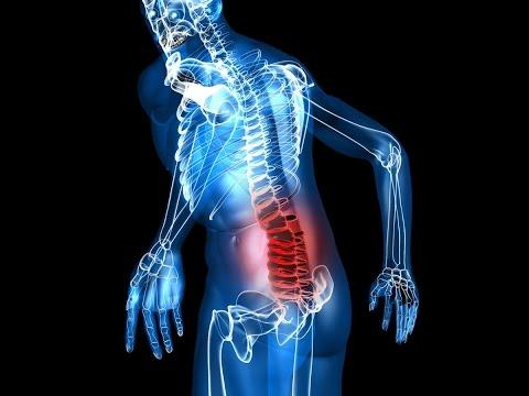 Что такое остеохондроз шейного отдела, чем опасен и как