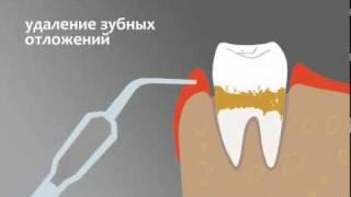 Закрытый кюретаж(Закрытый кюретаж пародонтальных карманов - стоматологическая процедура, применяемая при лечении десен..., 2010-10-08T06:15:45.000Z)