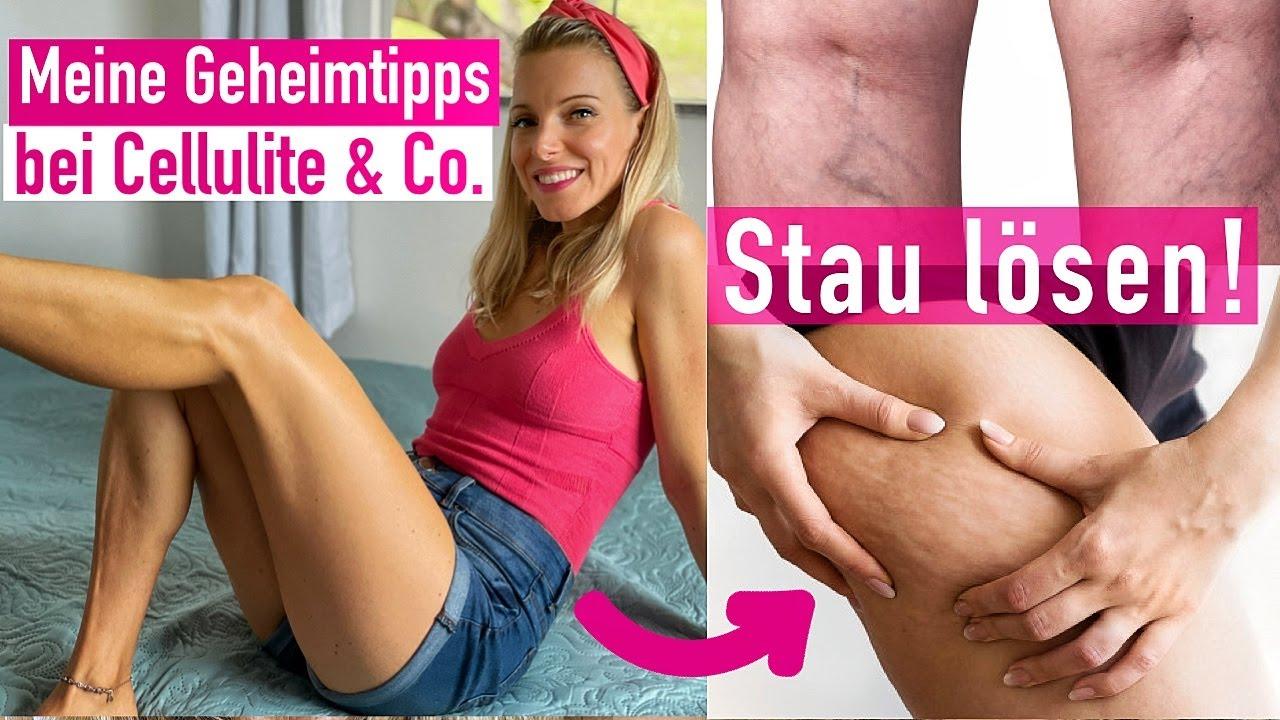 Knackige Beine in JEDEM Alter! Cellulite & Besenreiser natürlich behandeln I *Lipödem