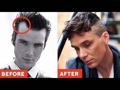 genius hairstyles hide receding