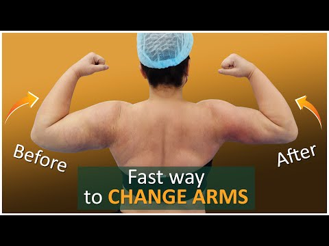 Lipo 360° Arms   Arm Liposuction Immediate Results   Celebrity Arms™   Expert Dr. Thomas Su