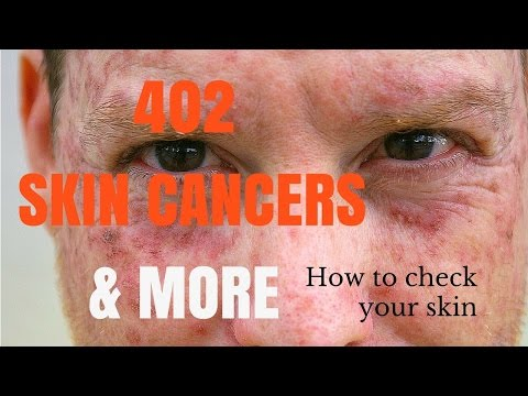 How to spot skin cancers