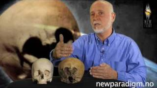 Lloyd Pye - Starchild Skull Interview 2010 - Part 5/6