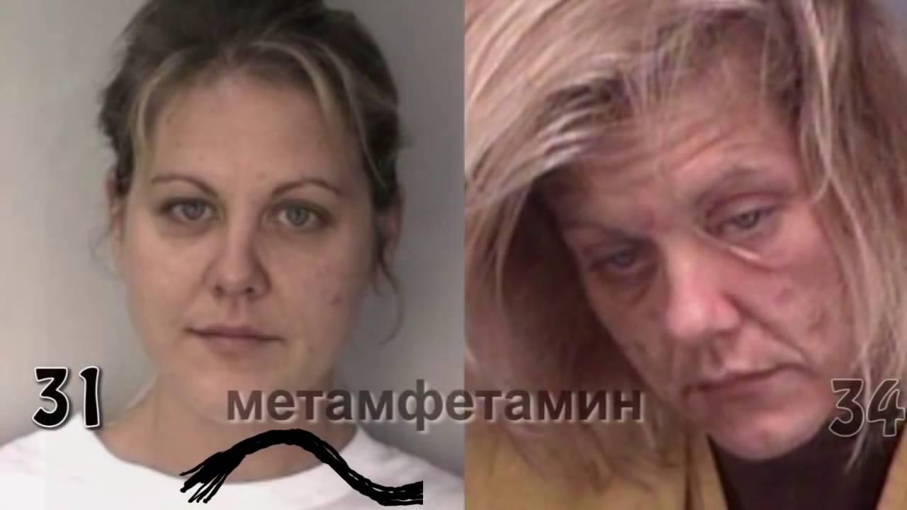 Наркомания до после учет больных наркоманией