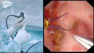 Flexible Ureteroscopy and Laser Dusting of 8 mm Kidney Stone