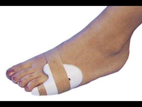 Перелом мизинца на ноге: надо ли гипс?