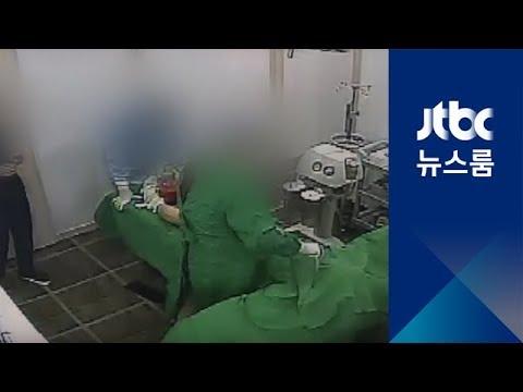 성형외과 수술 '마취' 뒤…녹음기에 담긴 '환자 성희롱'