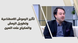 د. سالم ابو الغنم - تأثير الرموش الاصطناعية وتطويل الرمش والمكياج على العين
