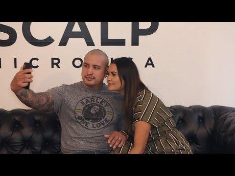 REAL Scalp Micropigmentation Review | Scalp Micro USA