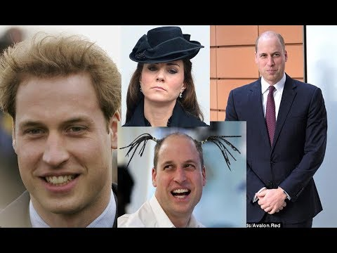 Hairdresser reveals alternative styling solutions for William - the Duke debuted a close-cut crop