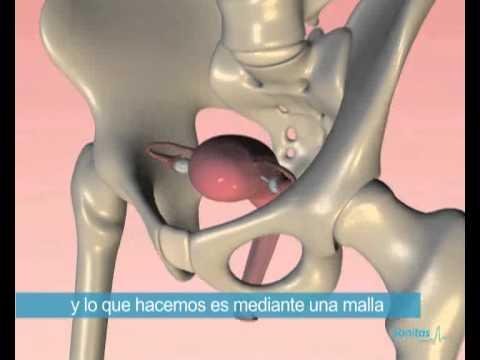 video de cirugía de próstata con videos de robot da vinci