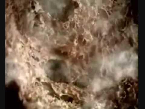 Reasons You Should Stop Smoking, Horrible Video !. Watch If You Dare !