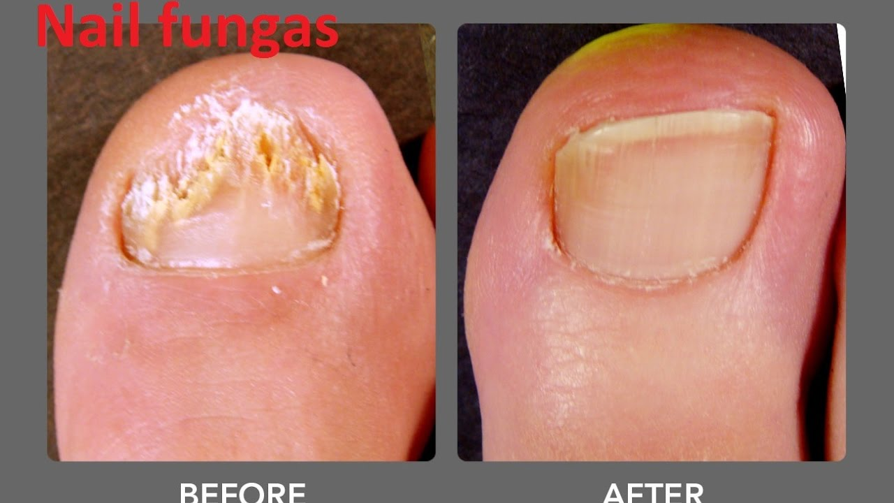Nail Fungus Treatment Zetaclear Before And After Pictures 2017