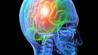 What Causes Epilepsy? (Epilepsy #5)
