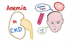 hqdefault - Does Chronic Kidney Disease Cause Anemia