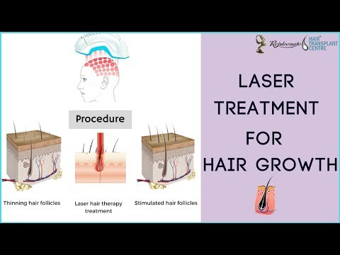 lasers for hair growth LLLT