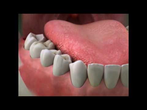 dry-socket- -lake-merritt-dental,-oakland,-ca