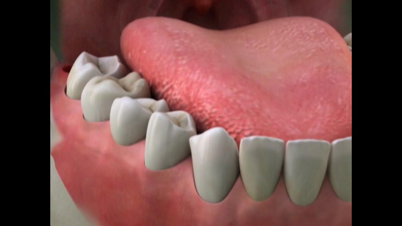Dry Socket Lake Merritt Dental Oakland Ca Youtube