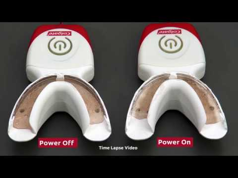 Understanding Electrochemistry S Impact On Teeth Whitening Youtube