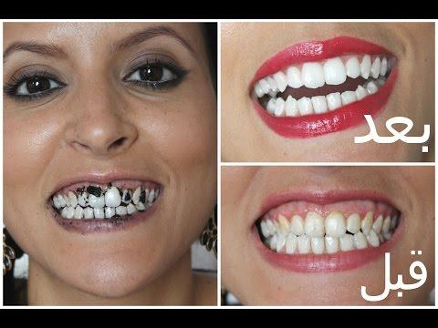 5 خلطات طبيعية لتبييض الأسنان  مع ميمي