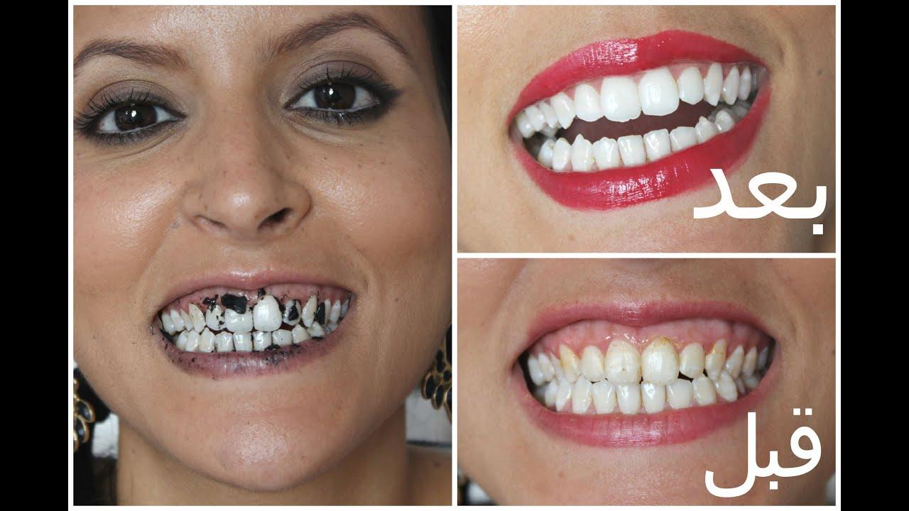 d7a392485 5 خلطات طبيعية لتبييض الأسنان| مع ميمي - YouTube