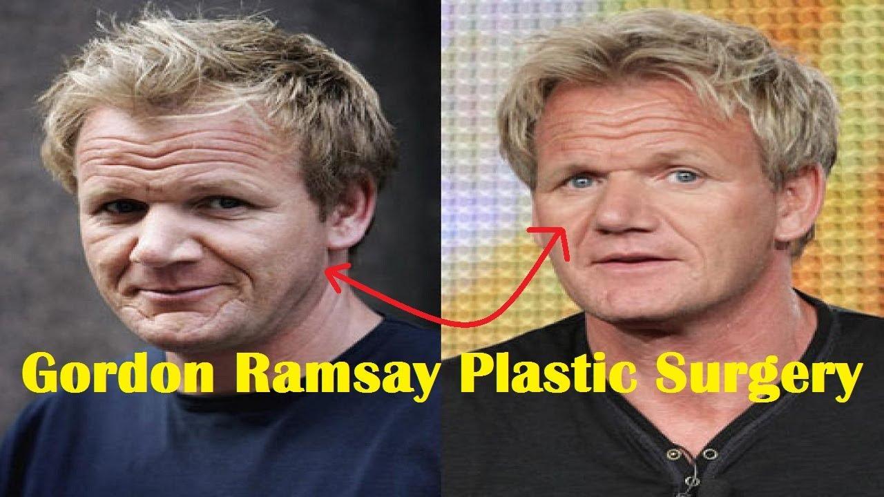 Gordon Ramsay Plastic Surgery Before and After - YouTube  Gordon Ramsay Botox