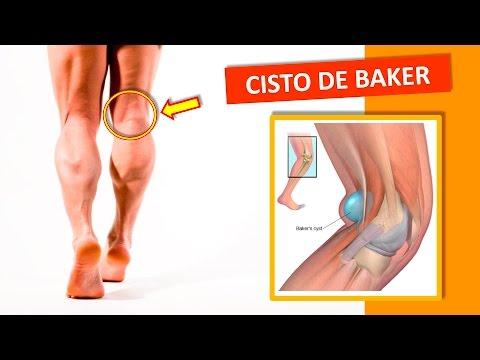 joelho estalou agora dor na parte de trás do joelho