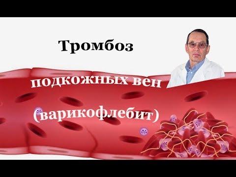 Лечить тромбофлебит поверхностных вен. Знания для всех. | тромбофлебита | поверхностных | тромбофлебит | тихонович | подкожных | цуканов | тромбоз | лечение | тромба | болят