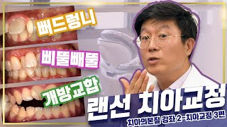★교정 전 필수★ 교정 후 치아 손상이 걱정? ㅣ개방교…