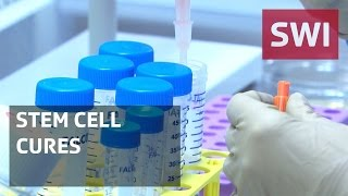 Stem cells: a miracle cure?